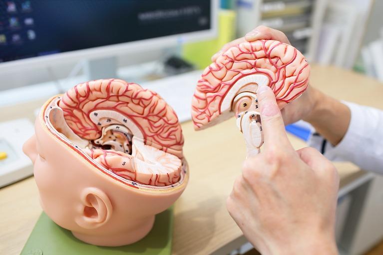 脳神経クリニックとは